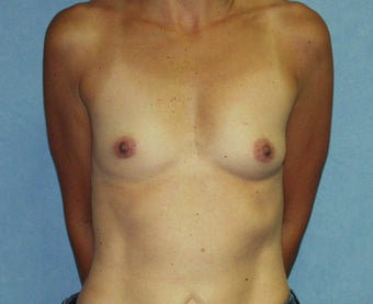 "No Scar on Breasts;  ""Scarless""  Breast Augmentation on uneven breasts by using the endoscopic technique.   before 982806"