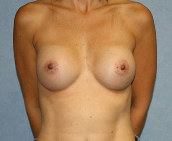 "No Scar on Breasts;  ""Scarless""  Breast Augmentation on uneven breasts by using the endoscopic technique.   after 982806"