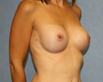 "No Scar on Breasts;  ""Scarless""  Breast Augmentation on uneven breasts by using the endoscopic technique.   982806"