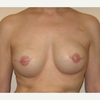 55-64 year old woman treated with Breast Reconstruction