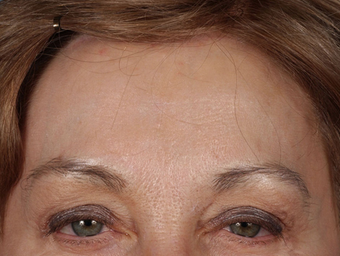 Forehead Lift after 1427362