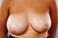 Breast Reduction before 3446236