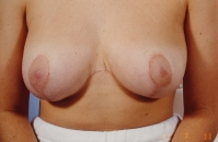 Breast Reduction after 3446236