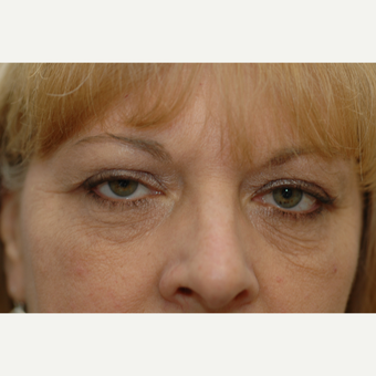 45-54 year old woman treated with Eye Bags Treatment before 3837318