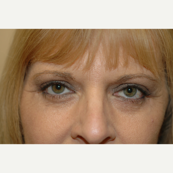 45-54 year old woman treated with Eye Bags Treatment after 3837318