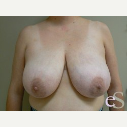 Breast Reduction before 3373530