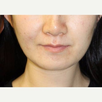 18-24 year old woman treated with Jaw Reduction after 2596687