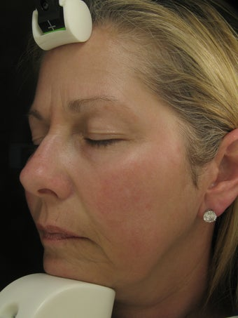 Fraxel Dual Laser for Melasma, Pigmentation, and Rosacea after 245031
