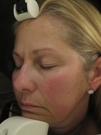Fraxel Dual Laser for Melasma, Pigmentation, and Rosacea before 245031