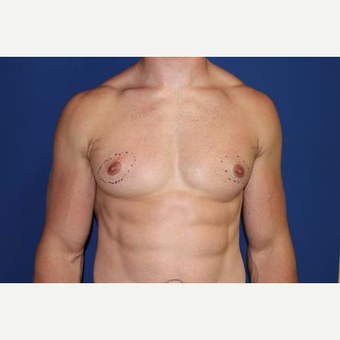 25-34 year old man treated with Nipple Surgery before 3066148