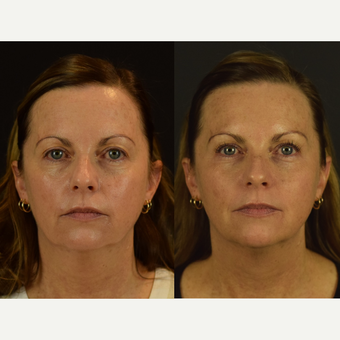 Non-Surgical Rejuvenation with PDO Threads before 3645136