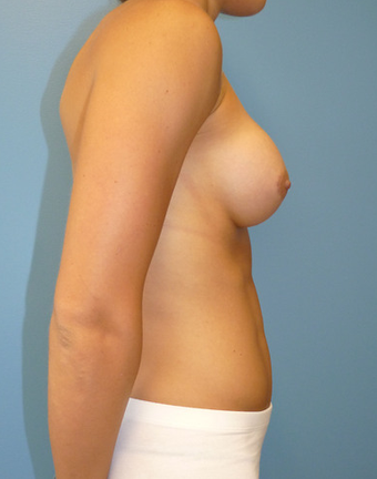 Breast Augmentation after 1579777