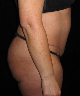45 year old woman treated with Tummy Tuck 3251701