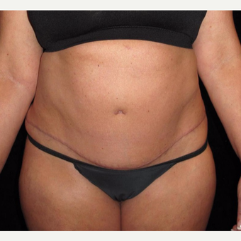 45 year old woman treated with Tummy Tuck after 3251701