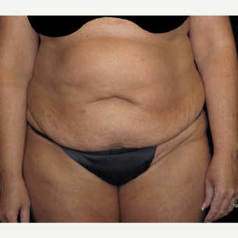 45 year old woman treated with Tummy Tuck before 3251701
