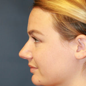 25-34 year old woman treated with Rhinoplasty before 3559760