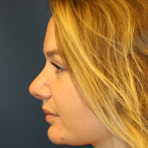25-34 year old woman treated with Rhinoplasty after 3559760