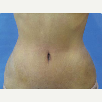35-44 year old woman treated with Tummy Tuck after 3374899