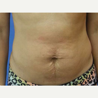 35-44 year old woman treated with Tummy Tuck before 3374899