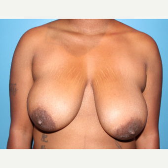 35-44 year old woman treated with Breast Reduction before 2717131