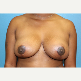 35-44 year old woman treated with Breast Reduction after 2717131