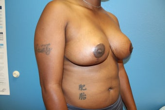 35-44 year old woman treated with Breast Reduction 2717131