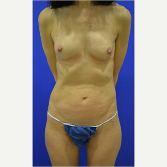 49 year old woman treated with Breast Reconstruction after 3725297