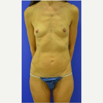 49 year old woman treated with Breast Reconstruction before 3725297