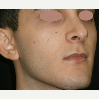 17 or under year old man treated with ProFractional Laser after 3150270