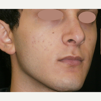 17 or under year old man treated with ProFractional Laser before 3150270
