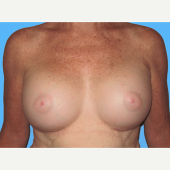Breast Augmentation after 3732423