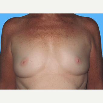 Breast Augmentation before 3732423