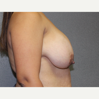 Bilateral Breast Reduction before 3487145