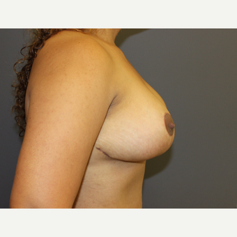 Bilateral Breast Reduction after 3487145