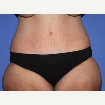 45-54 year old woman treated with Tummy Tuck after 3664349