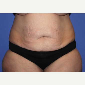 45-54 year old woman treated with Tummy Tuck before 3664349