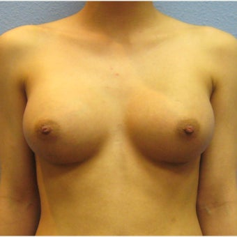 Breast Augmentation, Breast Implants after 1643518