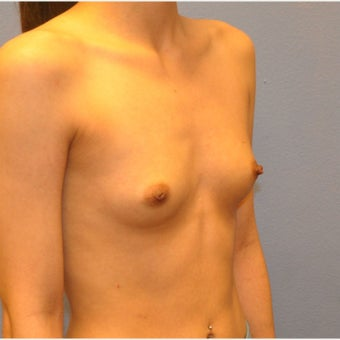 Breast Augmentation, Breast Implants 1643518