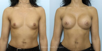 Breast Augmentation with 375cc High Profile Silicone Prosthesis before 1520529