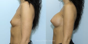 Breast Augmentation with 375cc High Profile Silicone Prosthesis after 1520529