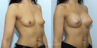 Breast Augmentation with 375cc High Profile Silicone Prosthesis 1520529
