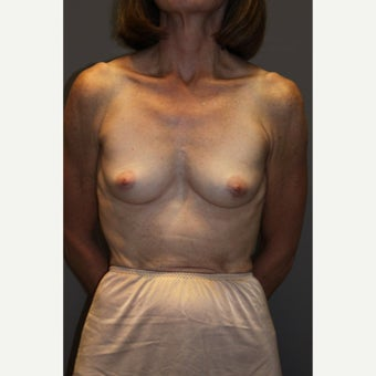 55-64 year old woman treated with Breast Implants before 2375337