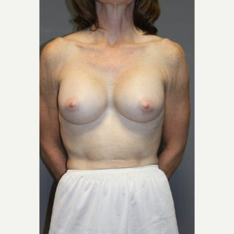 55-64 year old woman treated with Breast Implants after 2375337