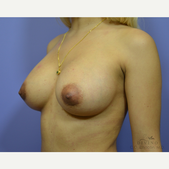 25-34 year old woman treated with Breast Augmentation after 3419070