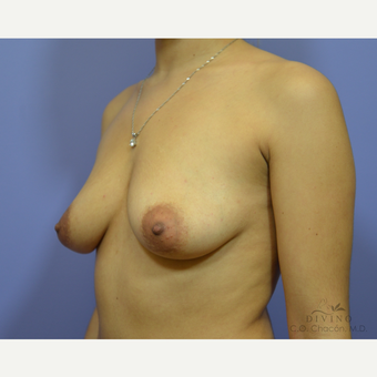 25-34 year old woman treated with Breast Augmentation before 3419070