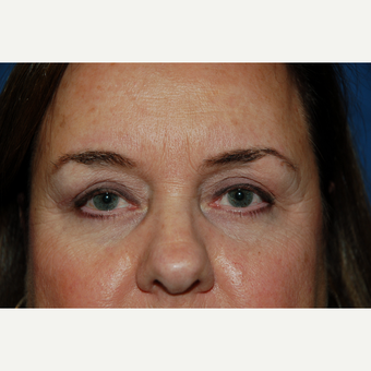 45-54 year old woman treated with Eyelid Surgery after 3610257