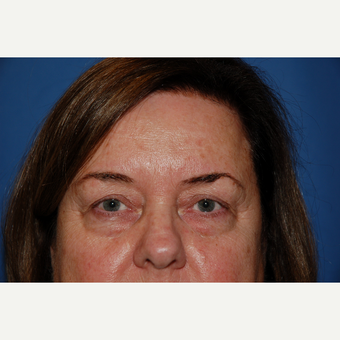 45-54 year old woman treated with Eyelid Surgery before 3610257