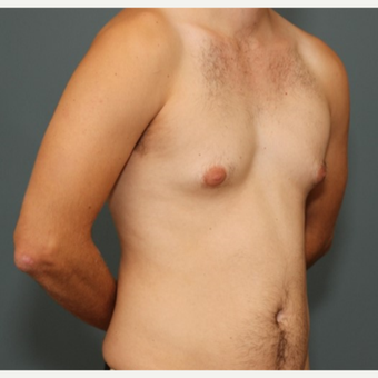 25-34 year old man requesting excision of gynecomastia before 3695440