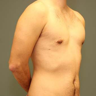 25-34 year old man requesting excision of gynecomastia after 3695440
