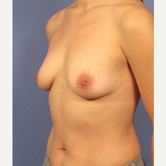 25-34 year old woman treated with Breast Implants before 3106266